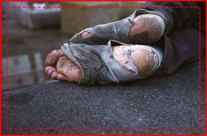 piedi del povero cv